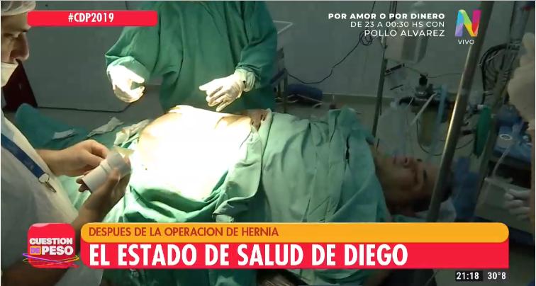 Operación de Diego